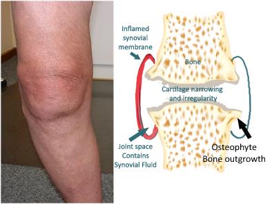 lo res osteoarthritis arthritis joint copy