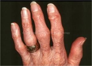 Osteoarthritis: Heberden