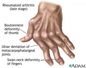 rheumatoidarthritishand