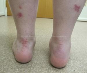 Psoriatic Arthritis: Enthesitis, Ankle