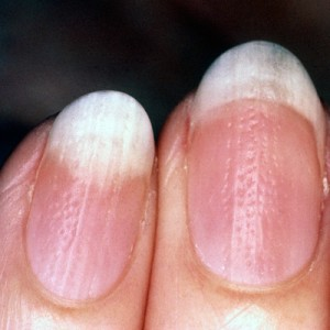 psoriasis-nail-finger-400x400